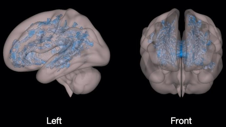 Razvoj Možganov Ob Zaslonu 1