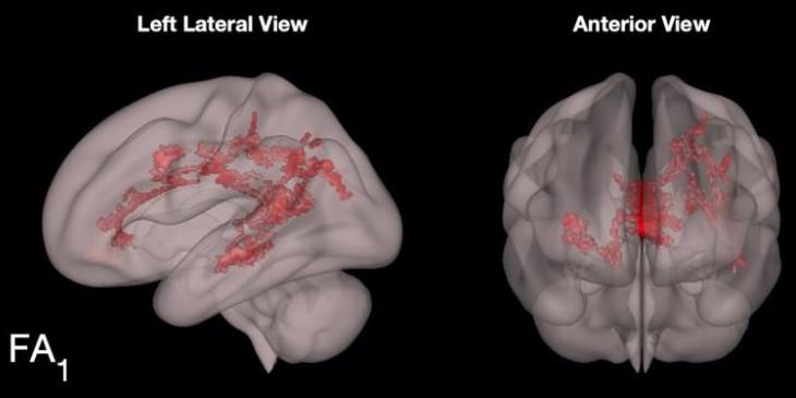 Razvoj Možganov Pri Branju Knjig 2